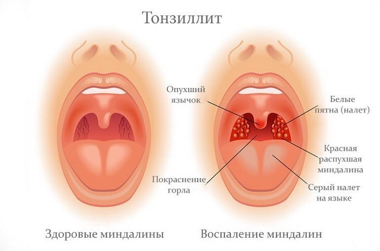 Причины и способы лечения тонзиллита